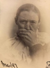 Patient E.R. at Glamorgan Asylum, from medical case book, 1897.