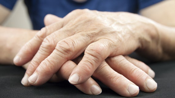 Hands with noticeable arthritus joints