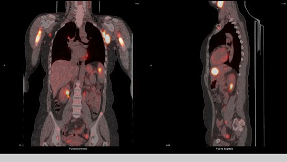 A PET scan test result showing coronal and sagittal plane views