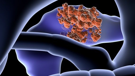 Artist's impression of pancreatic cancer