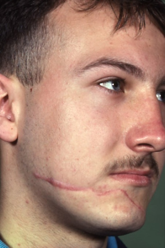 Image of a man with a scar