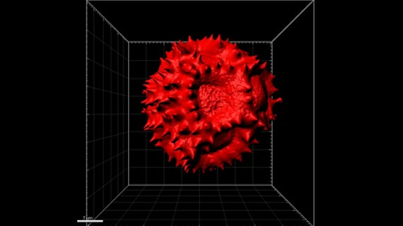 A 3D scanned image of  Taraxacum  Pollen - one of the antibacterial plants identified in our study.