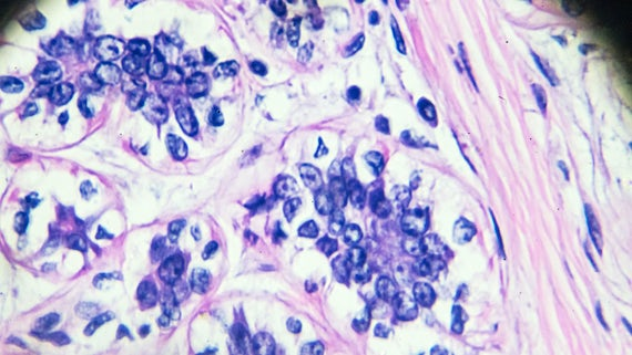 Breast cancer under a microscope