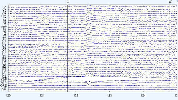 This picture shows an example of continuously recorded EEG signals. On a light blue background, tens of horizontal black lines fluctuate across time from left to right. The fluctuation of each line represents the amplitude fluctuation of the signals being picked up by the EEG electrodes placed on the scalp. Two vertical lines overlaying the signals of all electrodes represent two triggers sent to mark the time point of stimuli being presented.