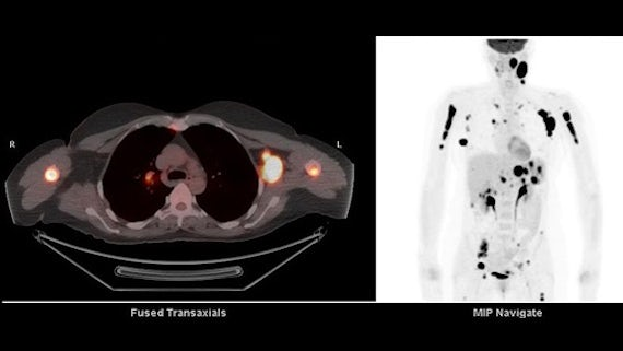 PET scan test results for lymph.