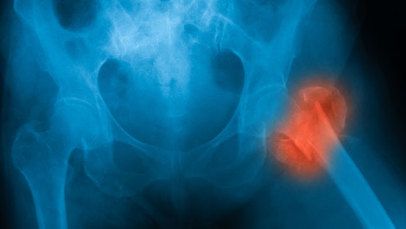 X-ray of broken hip