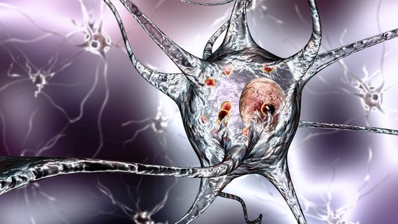 Parkinson's disease 3D illustration showing neurons containing Lewy bodies