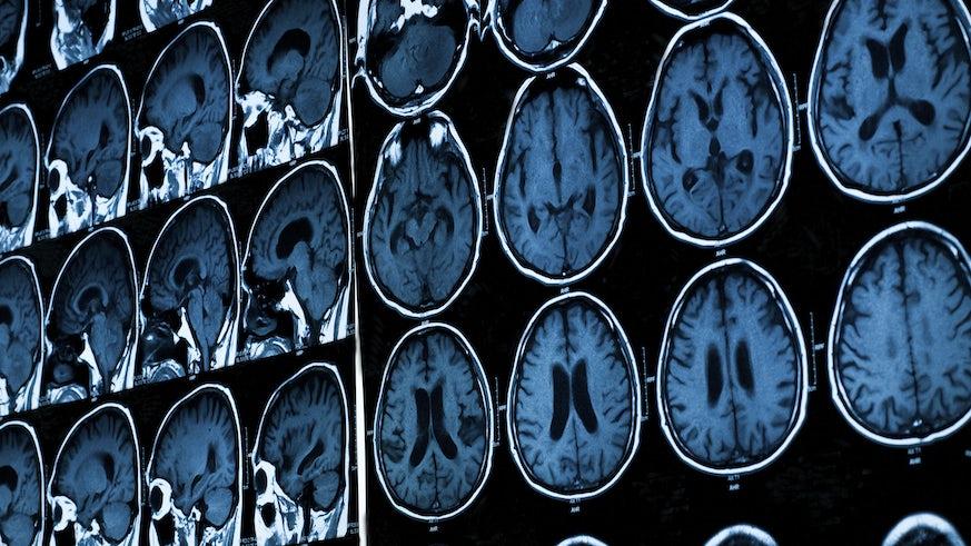 Brain images MRI scan
