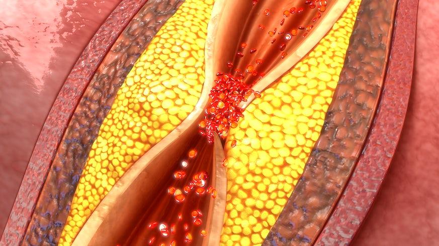 Artist's impression of clogged artery