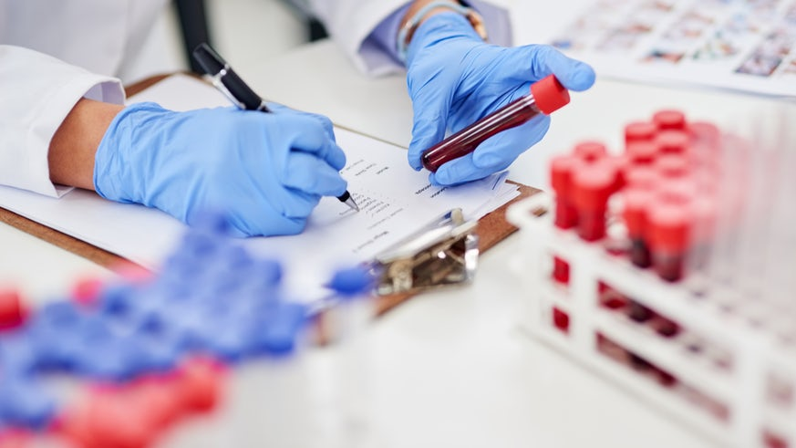 Scientist checking blood samples