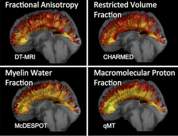 Four images of microstructural imaging: one with the title 'Fractional anisotopy' and DT-MRI; another which states 'Restricted volume fraction' and 'charmed'; the third states 'Myelin Water Fraction' and 'McDESPOT'; the fourth states 'Macromolecular Proton Fraction' and 'qMT'