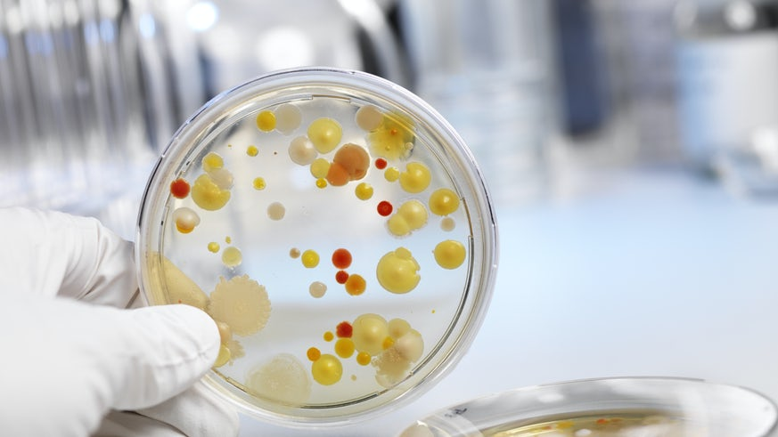 Petri dish containing bacteria