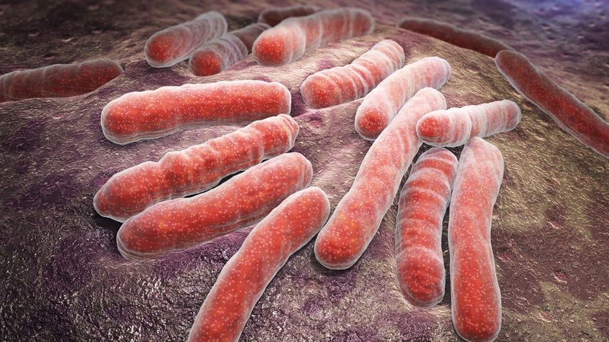 Bacterial TB