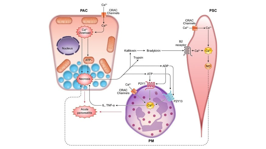 New concept of acute pancreatitis showing interactions between three different cell types