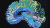 Colourful MRI scan of a brain
