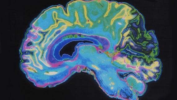 Colourful MRI scan of a brain