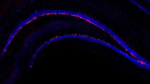 New neurons in hippocampus