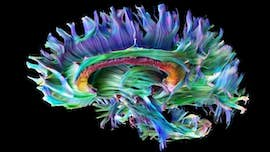 Microstructure MRI scan of a human brain