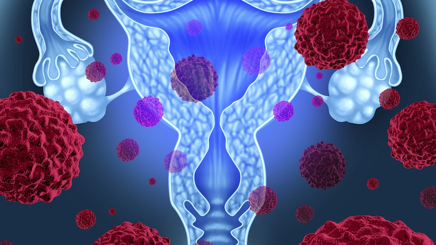 World S Biggest Ovarian Cancer Trial News Cardiff University