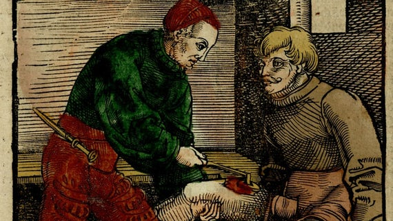 Woodcarving of a doctor cauterizing a wound on a man's thigh.