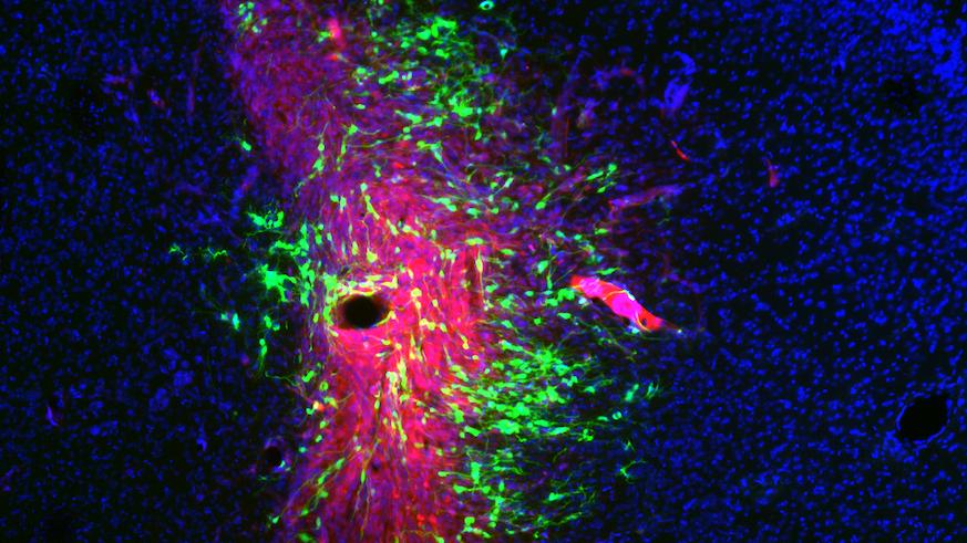 Brain cancer cells