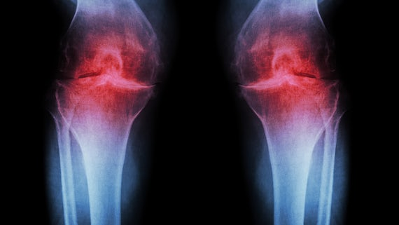 Image of a medical scan of arthritic knees