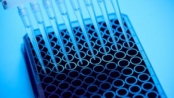 Proteins and diagnostics